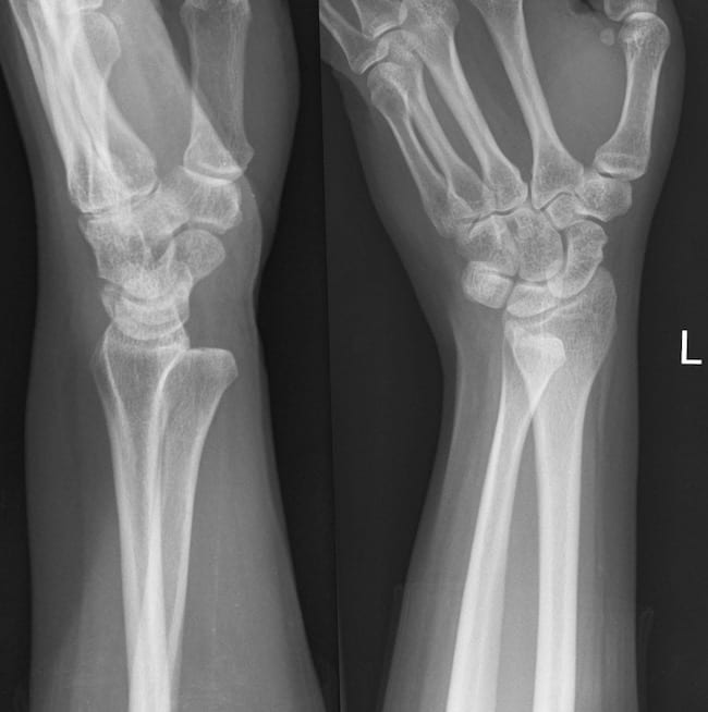 DRUJ dislocation wrist XR 003
