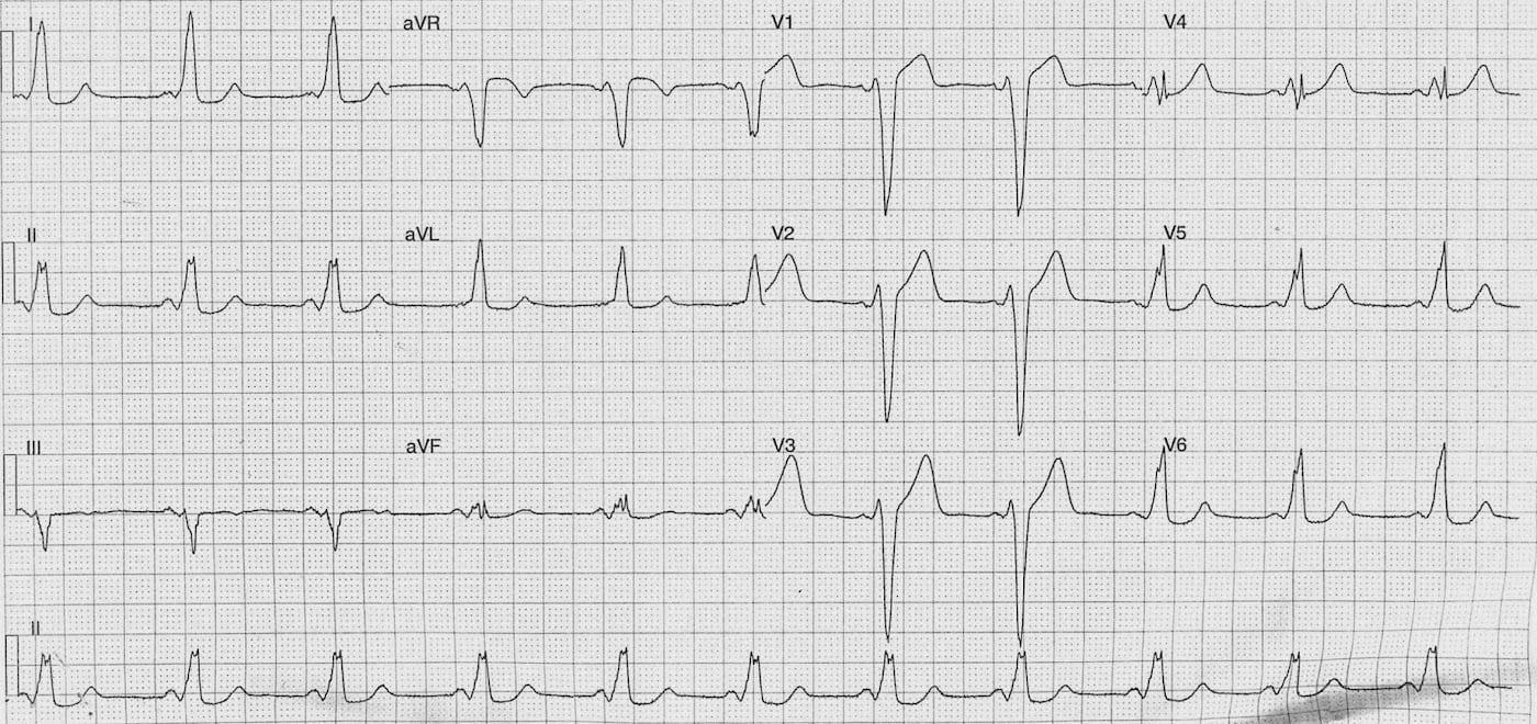 ECG Case 114a LITFL Top 100 EKG