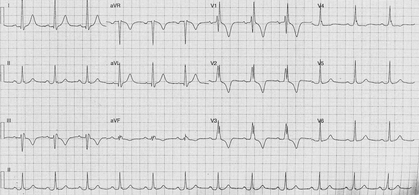 ECG Case 114b LITFL Top 100 EKG