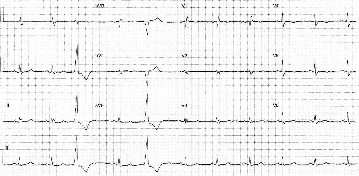 ECG Case 115 LITFL Top 100 EKG