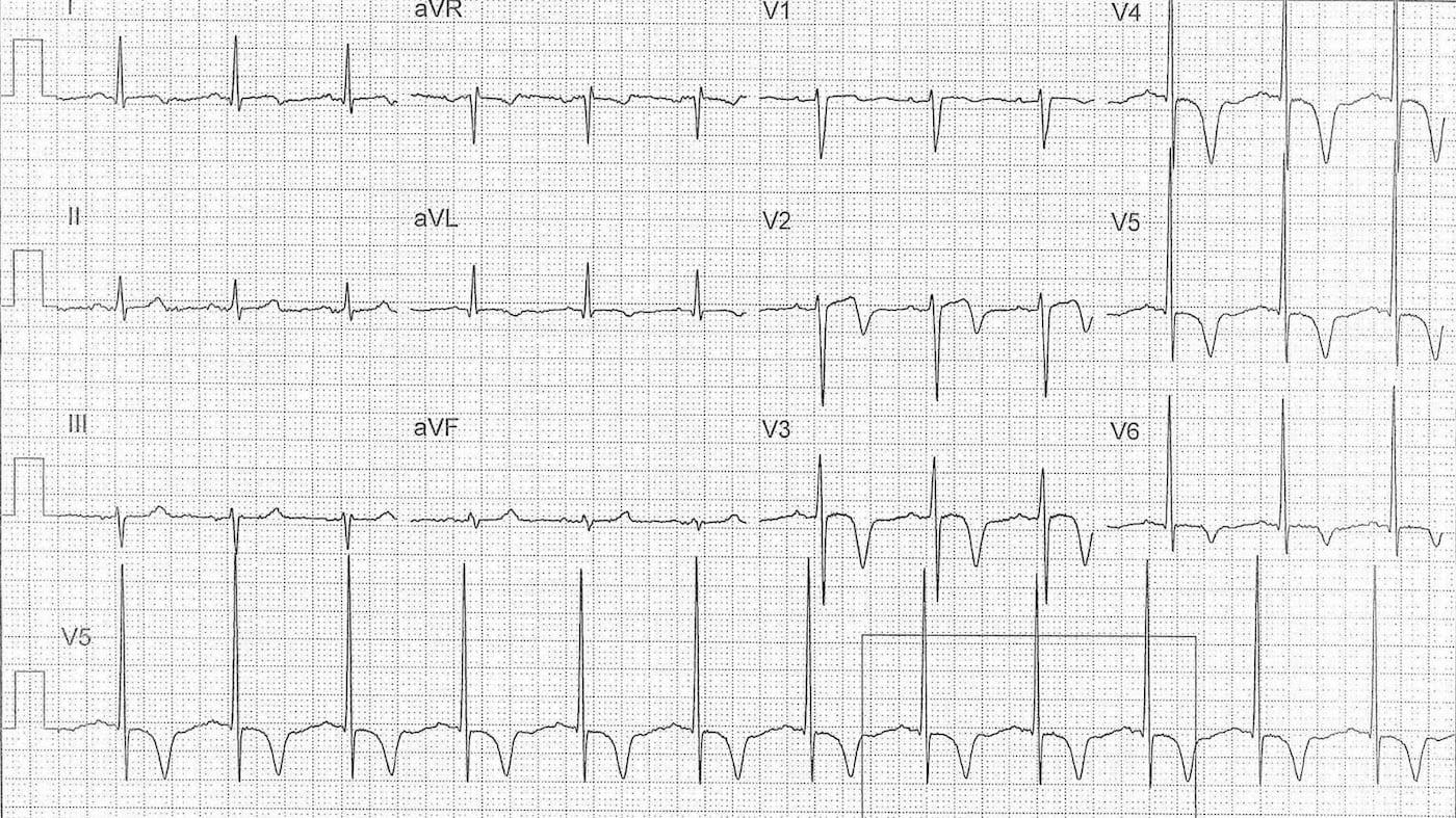 ECG Case 116a LITFL Top 100 EKG