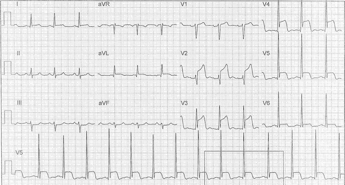 ECG Case 116b LITFL Top 100 EKG