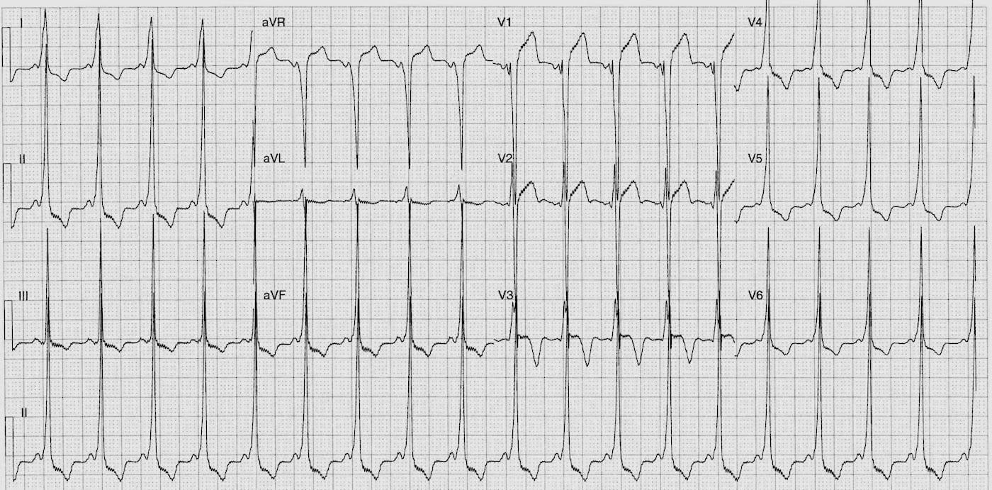 ECG Case 117 LITFL Top 100 EKG