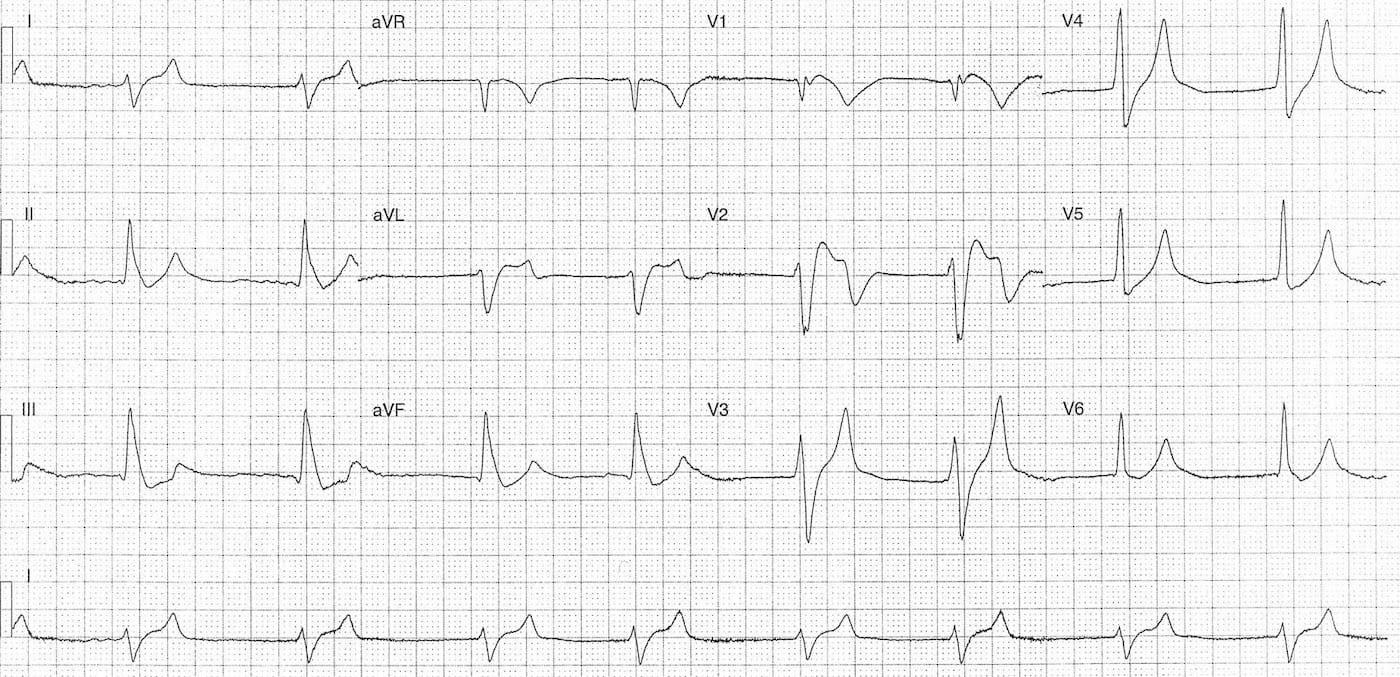 ECG Case 118a LITFL Top 100 EKG