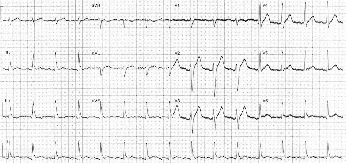 ECG Case 118b LITFL Top 100 EKG