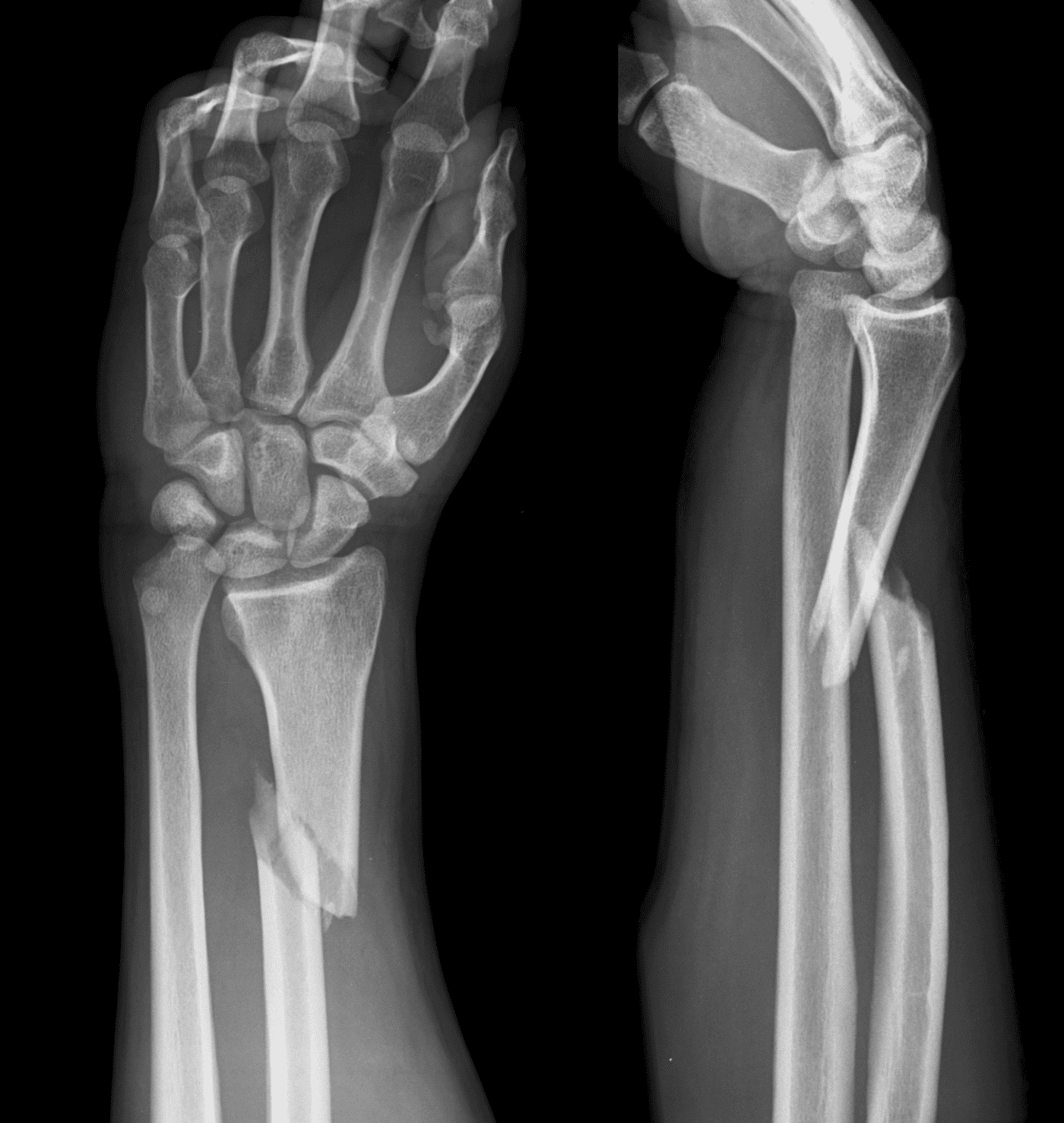 ICE 001 Galeazzi forearm fracture dislocation