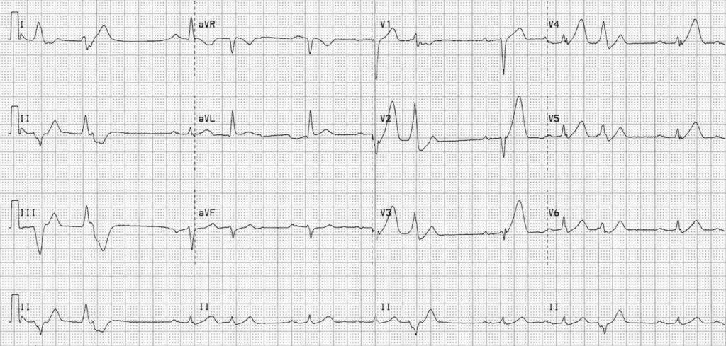ECG Anterior STEMI hyperacute 2