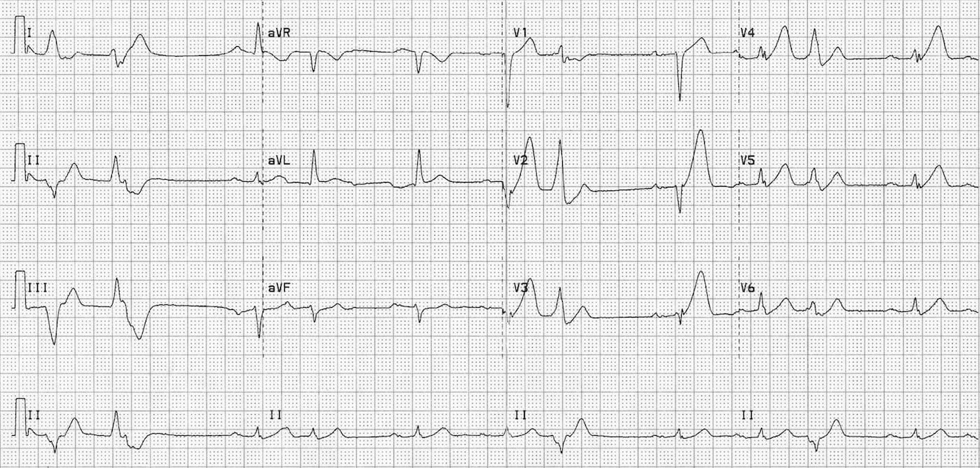 ICE 004 anterior hyperacute STEMI ECG