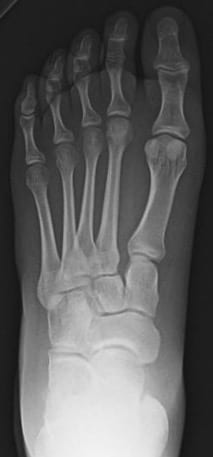 ICE 009 Lisfranc injury