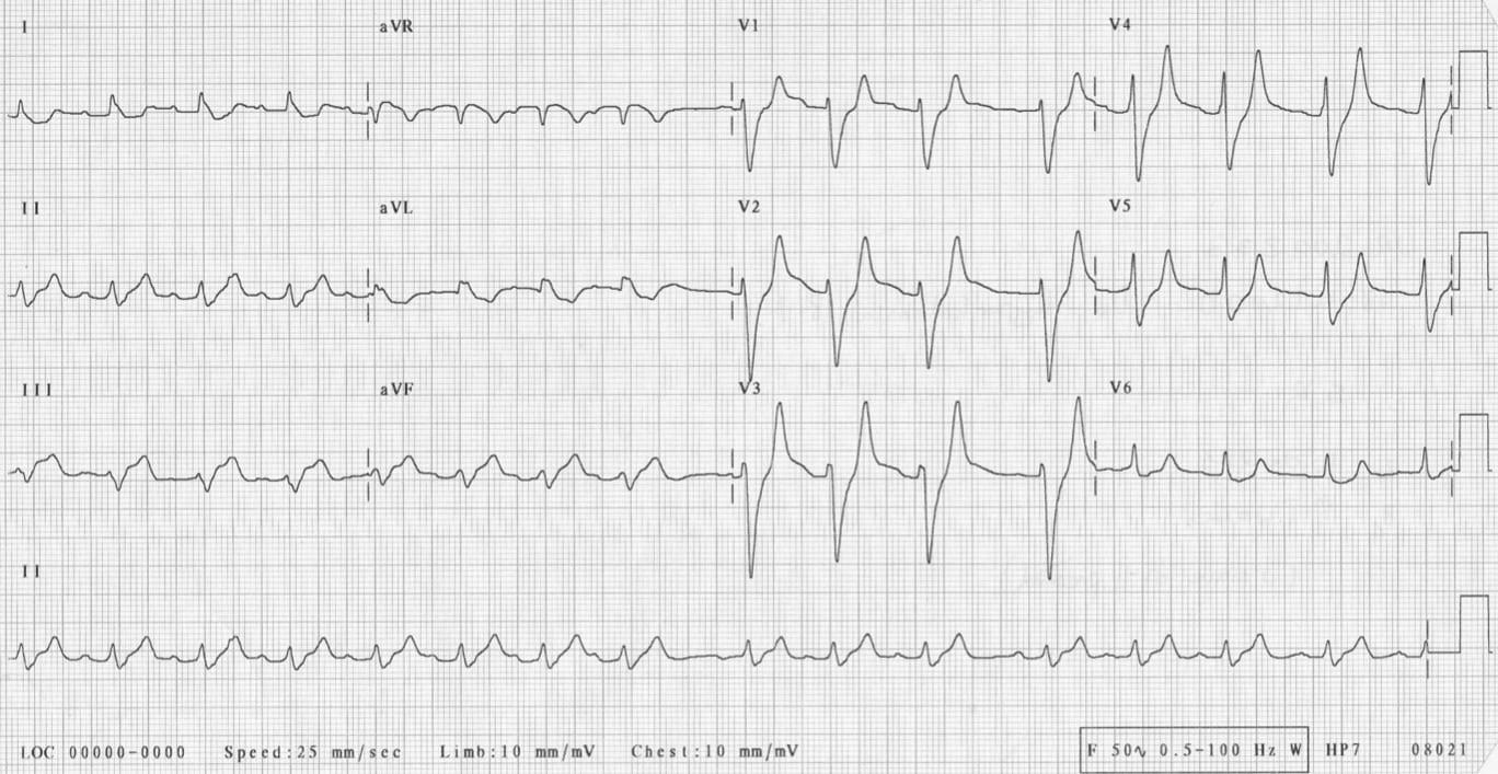 ICE 11 ECG hyperkalemia