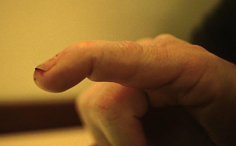 Mallet finger LITFL