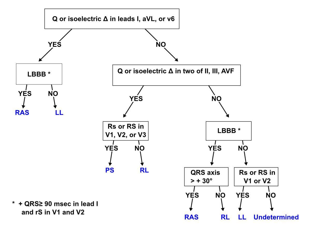 Milstein algorithm WPW