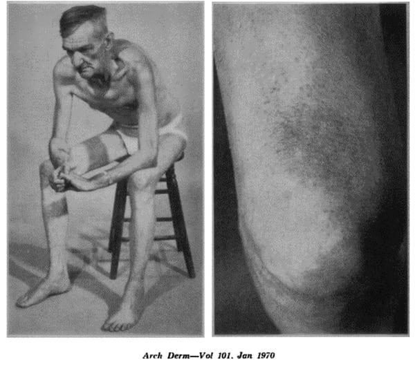 Dahl sign hyperpigmentation 1970