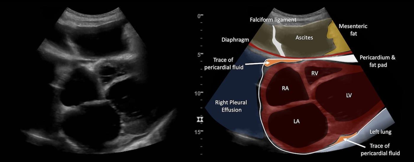 LITFL Ultrasound Case 101 Key