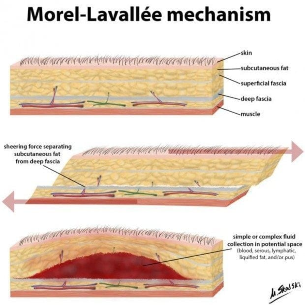 Morel-Lavallee