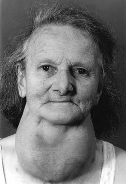 Derbyshire neck