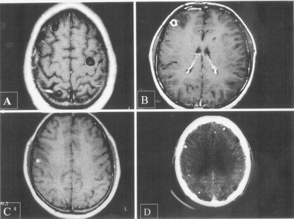 4-stages-of-neurocystercicosis-590x440