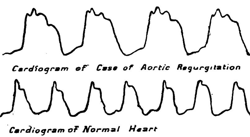 Broadbent pulsus bisferiens 1899