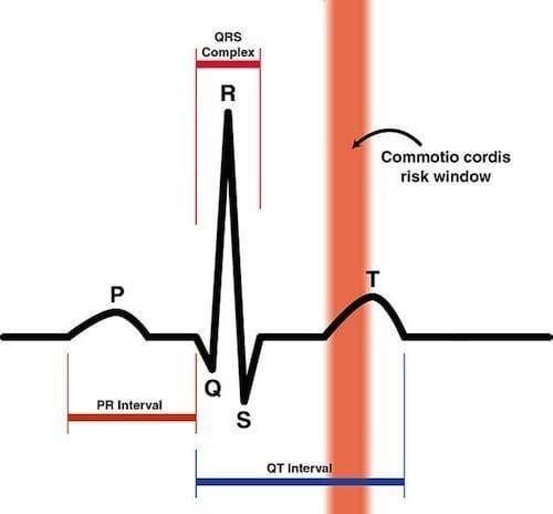 Commotio Cordis Risk Zone