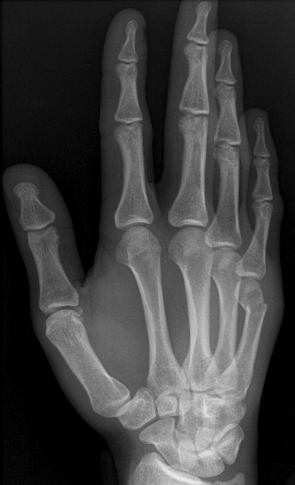 Boxers_Fracture