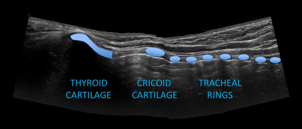 Neck-trachea-label1