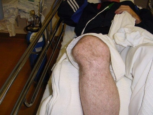 Patellar-dislocation