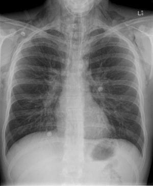 Pneumomediastinum in asthmatic