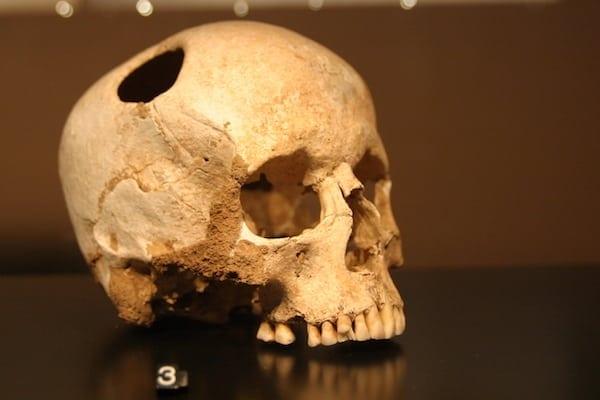Trepanated-Skull