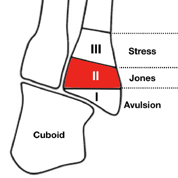 Jones-Fracture-5th-Metatarsal 360