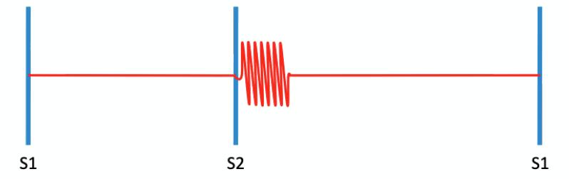 Key-Hodgkin murmur cardiac eponym