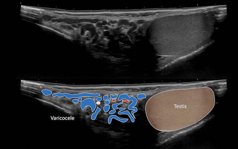 Ultrasound Case 105 Image 3 varicocele panoramic view