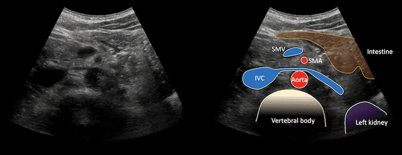 Ultrasound Case 105 Image 4 Left renal Vein