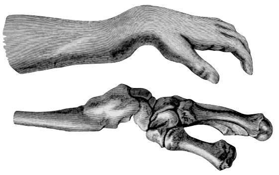Colles fracture. Clinical and post mortem by Smith 1847