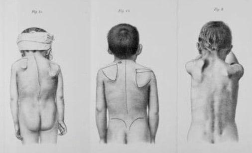 1891 Sprengel Die angeborene Verschiebung des Schulterblattes nach oben