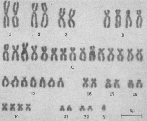 1963 D1 trisomy