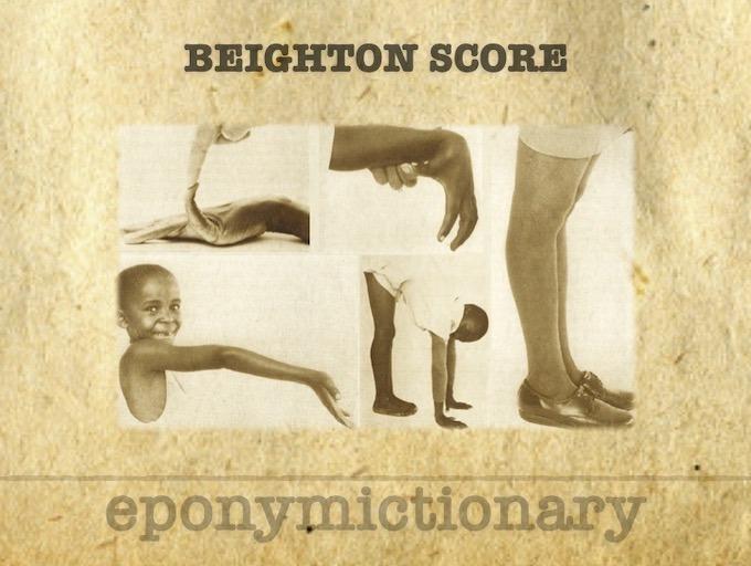 Beighton Score 1973 340