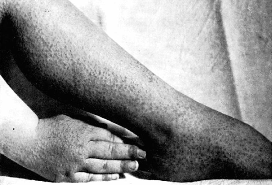 Crosti A, Gianotti F. Dermatose éruptive aero-située d'origine probablement virosique