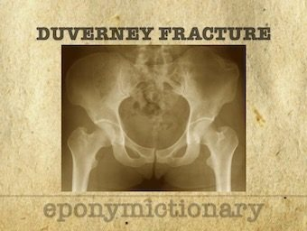 DUVERNEY FRACTURE 340