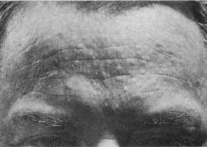 Fibrofolliculomas of Birt-Hogg-Dubé syndrome 1977