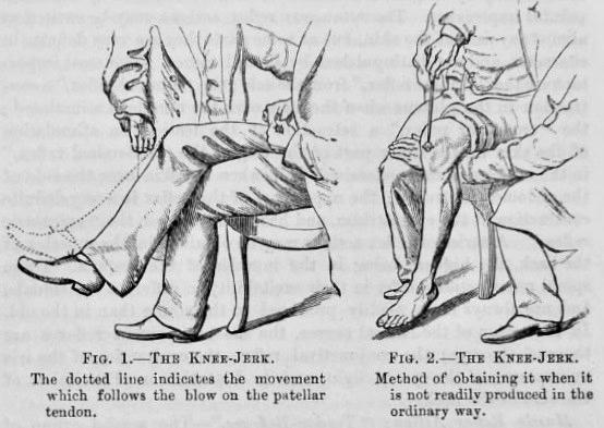 Gowers Knee-jerk 1892
