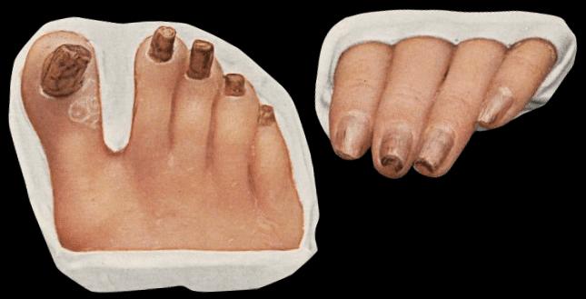 Jadassohn-Lewandowsky syndrome (pachyonychia congenita) 1906