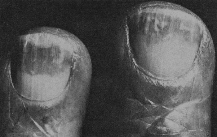 Lindsay 1967 half-and-half nails