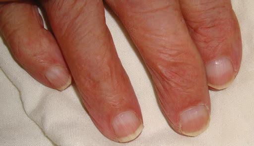 Lindsay nails Half-and-Half nails