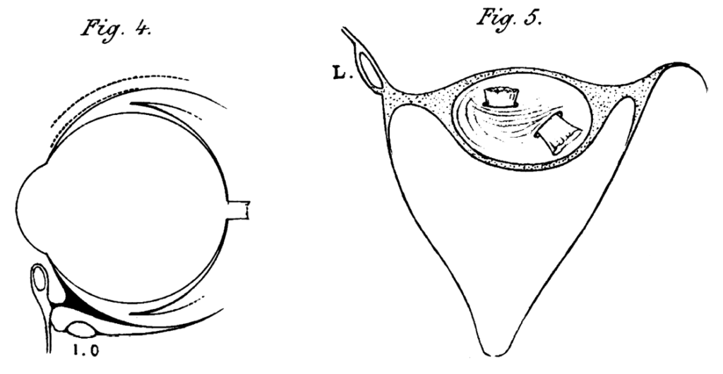 Lockwood's suspensory ligament 1885