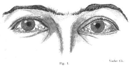 Louis-Bar ataxia-telangiectasia