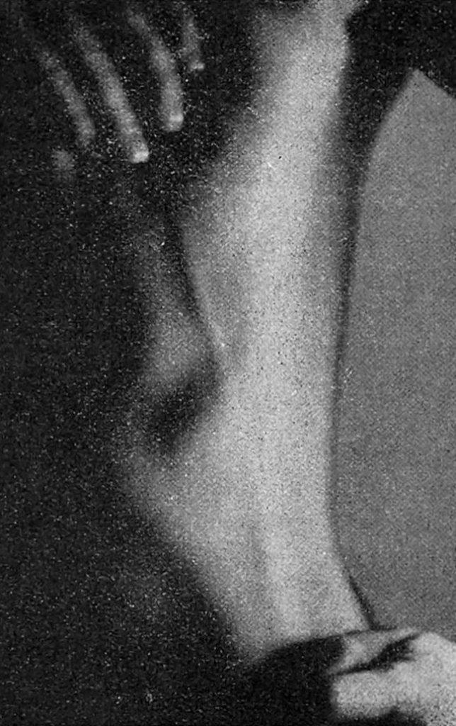 Mondor. Tronculite de la paroi thoracique antéro-latérale gauche 1955