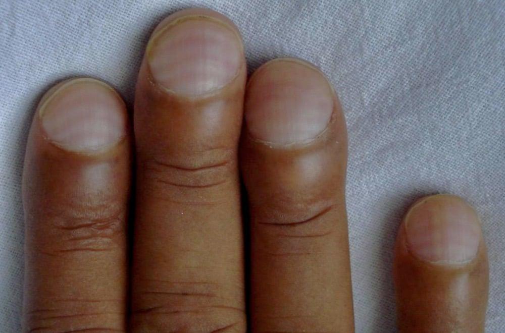 Muehrcke lines chronic hypoalbuminemia CMAJ
