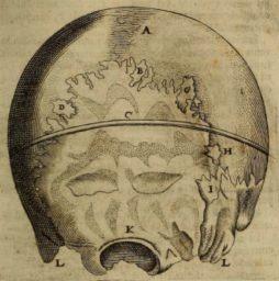 Ossa Wormiana (Wormian bones) D 1684