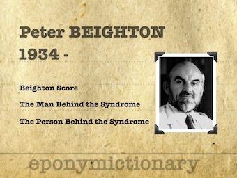 Peter-Beighton 340