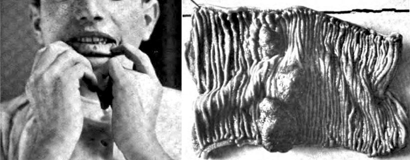 Peutz 1921 Gecombineerde familiaire polyposis met eigenaardige pigmentaties van huid